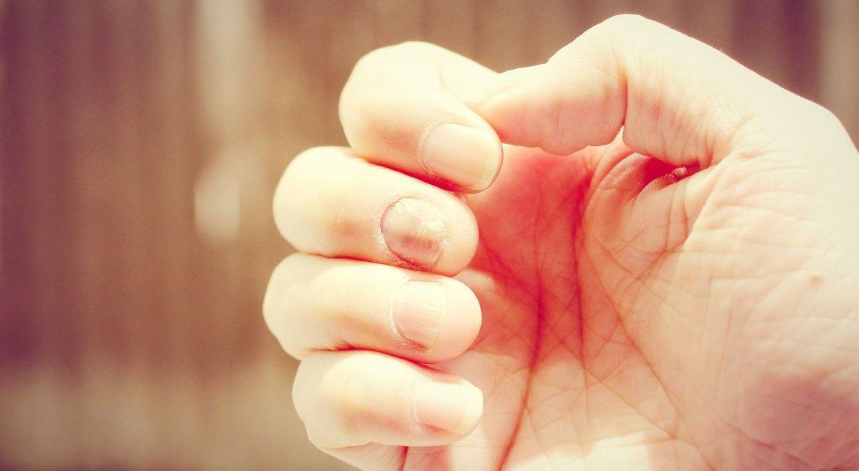 jak wybielić żółte paznokcie sposoby
